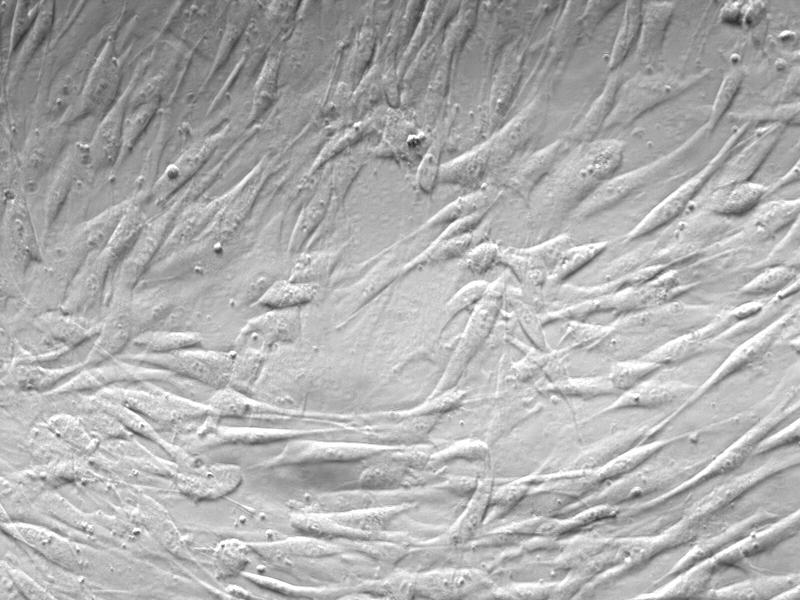 ki67 看成纤维细胞增殖