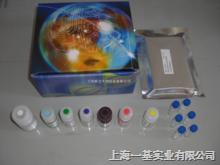 (ACA)小鼠抗中性粒/中心体抗体Elisa试剂盒