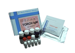 猪肺表面活性物质相关蛋白A(SP-A)ELISA试剂盒订购指南,欢迎联系在线工作