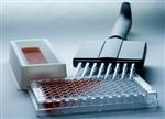 大鼠血纤蛋白原(Fbg)ELISA试剂盒