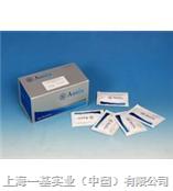 Elisa厂家供应大鼠抑制素A(INH-A)试剂盒
