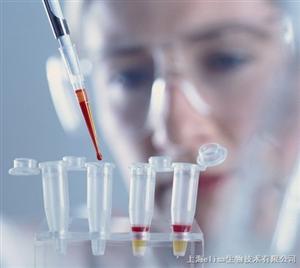 鼠抗人CD4单克隆抗体特点