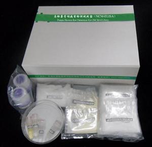 人γ干扰素(IFN-γ) ELISA试剂盒,IFN-γ elisa kit