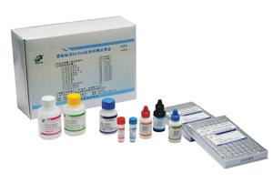 人肾病蛋白(nephrin)ELISA Kit