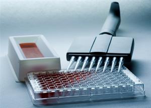 大鼠甲种胎儿球蛋白/甲胎蛋白(AFP)ELISA试剂盒